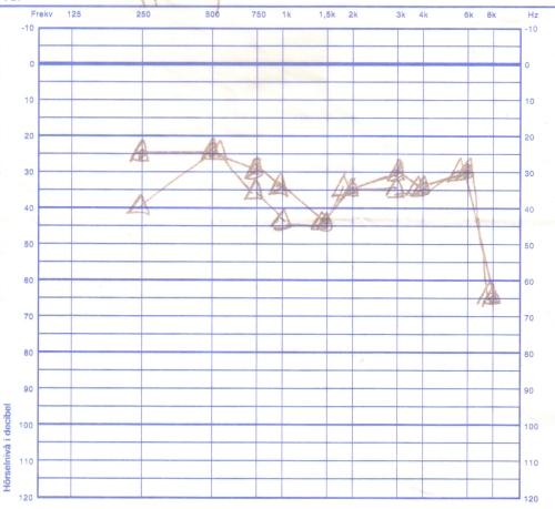 2007-01-25. Första hörseltestet efter operationen.